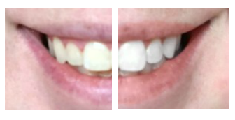 Rosewood and Grace | Smile Brilliant Before & After